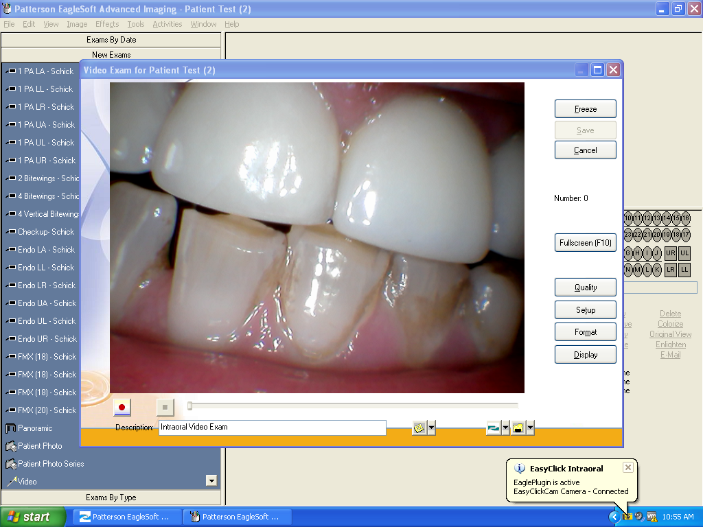 Intraoral Cameras for Eaglesoft and Patterson Image | EasyClickCam